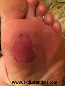 www.TkdEssentials.com - Blister Broken Under Callus, Ripped Skin Removed 1
